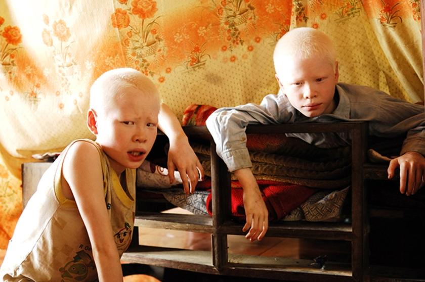 Portrait of Vietnamese Albino twin brothers