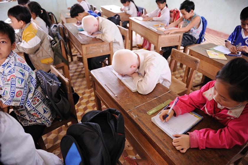 Albino twins studying at school