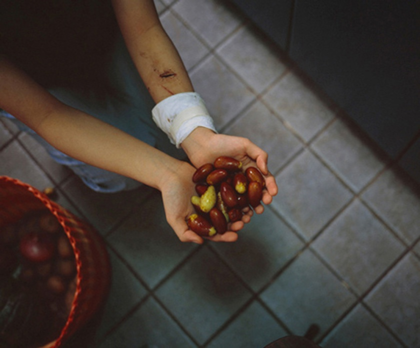 Woman with bandaged arm holding fruit. From the 'Bees' project by Zhe Chen.