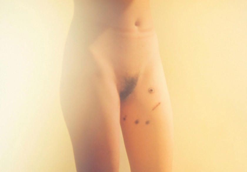 Nude woman with burn marks on legs. From the 'Bees' project by Zhe Chen.